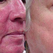 Розацеа до и после лечения лазером