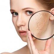 При сухости кожи появляются небольшие трещинки