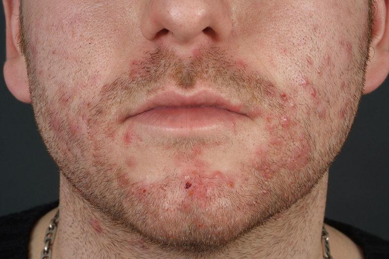 Пятна на лице больше всего расстраивают пациентов