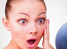 Сухие пятна на коже – частое и неприятное явление